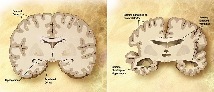 مقایسهی مغز سالم با مغز مبتلا به آلزایمر