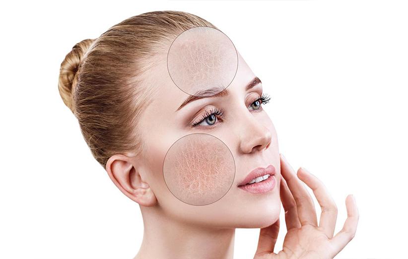 پوست های ترکیبی