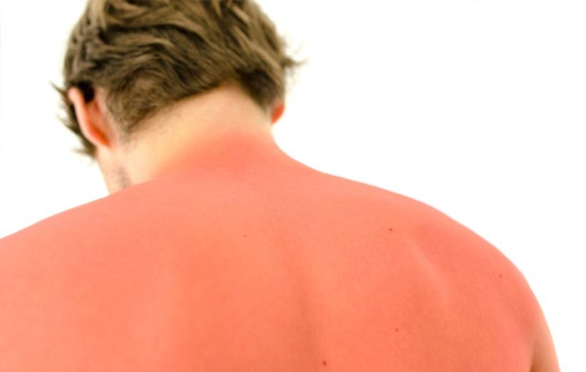 قرمزی پوست