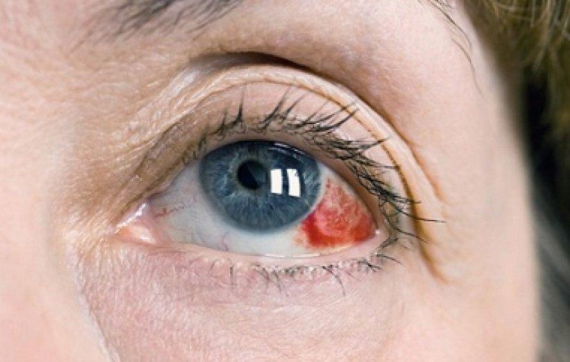 قرمزی چشم و فشار خون