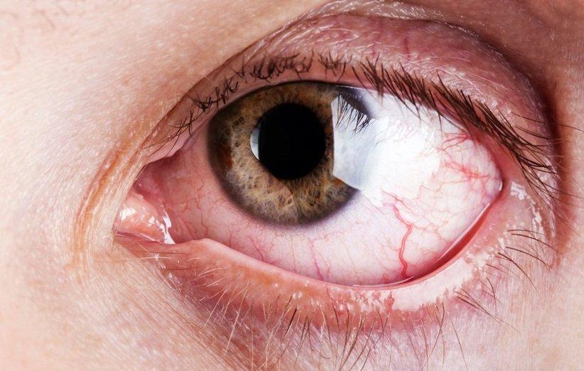 چگونه قرمزی چشم را برطرف کنیم