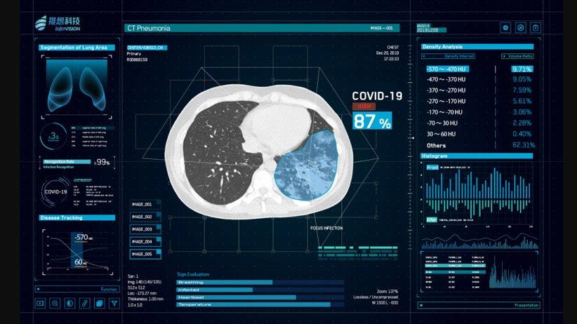 هوش مصنوعی ویروس کرونا