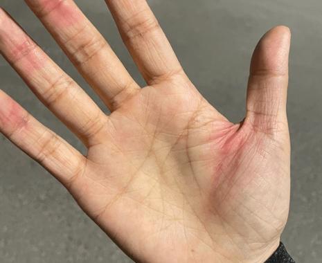 بریدن دست توسط لبههای آیفون 12