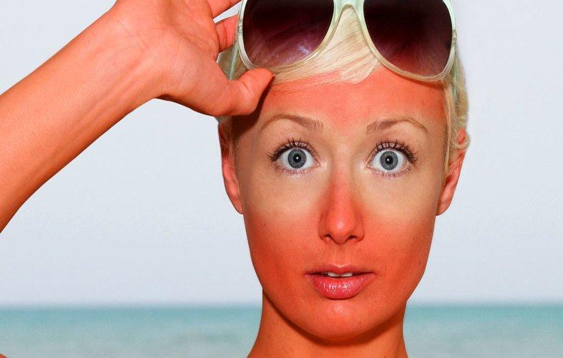 عسل برای درمان زخم و آفتاب سوختگی