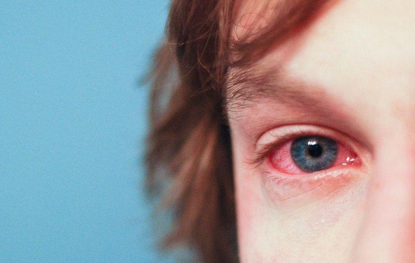 علائم کمتر رایج حساسیت فصلی
