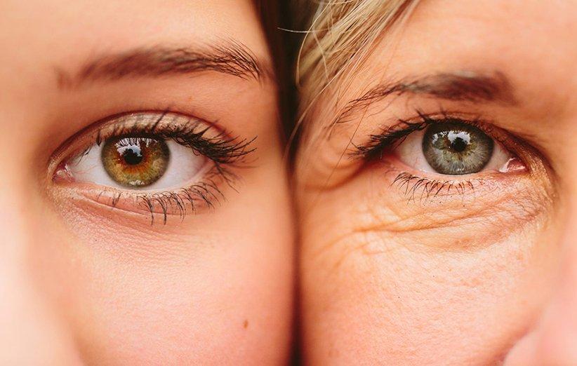 کرم دور چشم از مناسبترین انواع کرم پوست