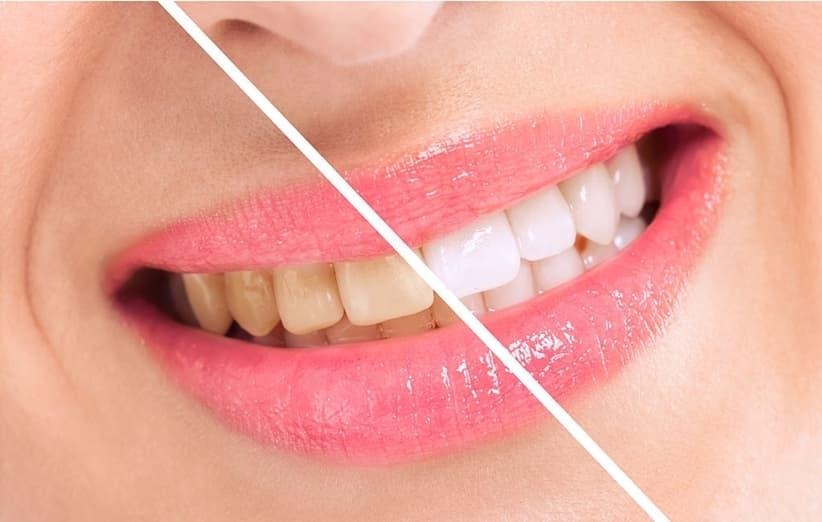 پلاکها چه تاثیری در تشکیل جرم دندان دارند؟