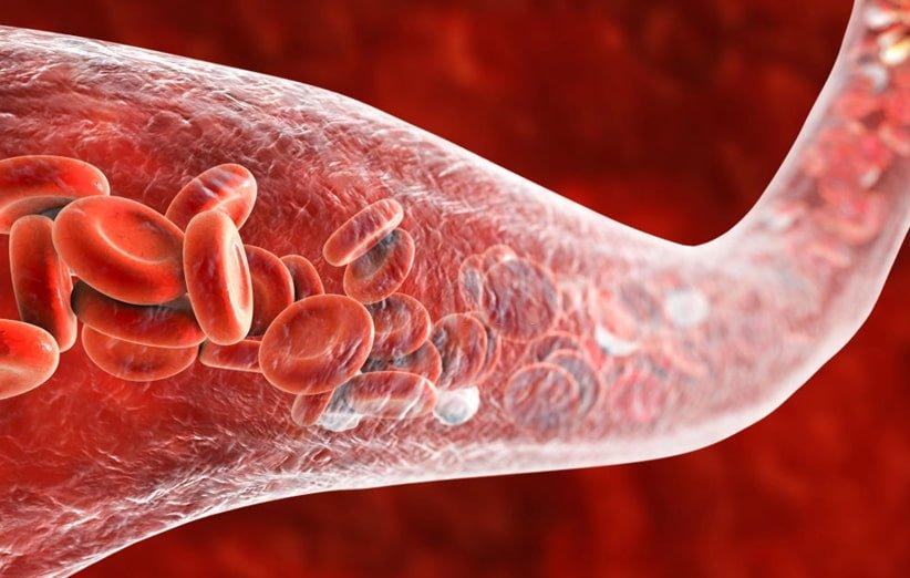 تشخیص سرطان با آزمایش خون سلولهای توموری در گردش